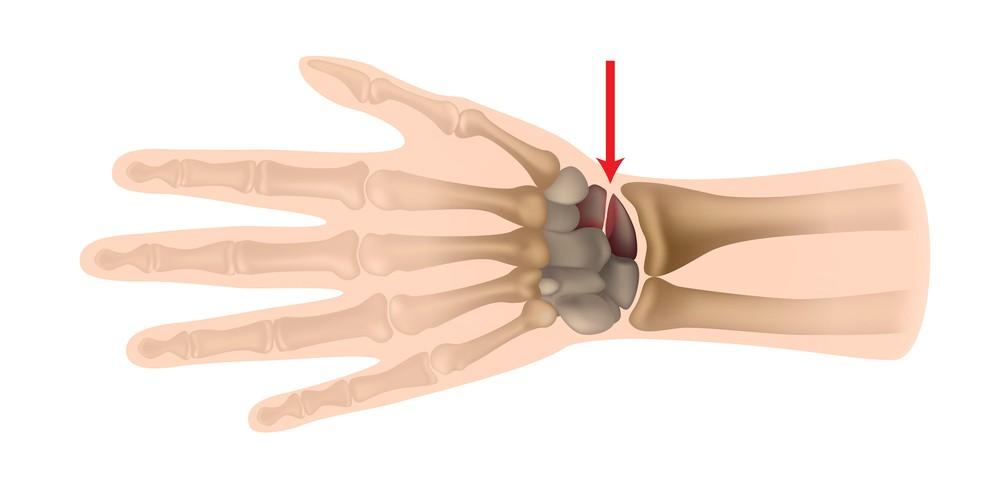 Ложный сустав ладьевидной кости кисти