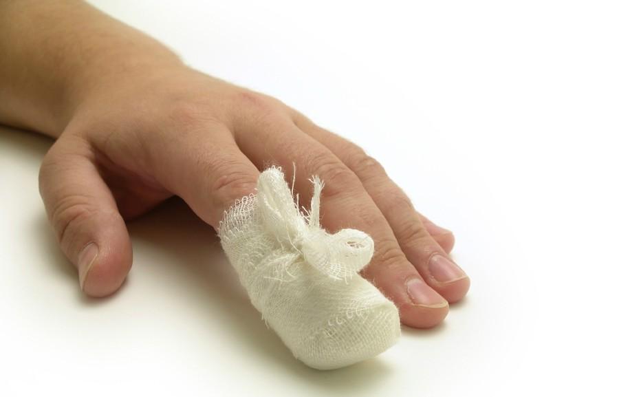 Ушиб ногтя на руке