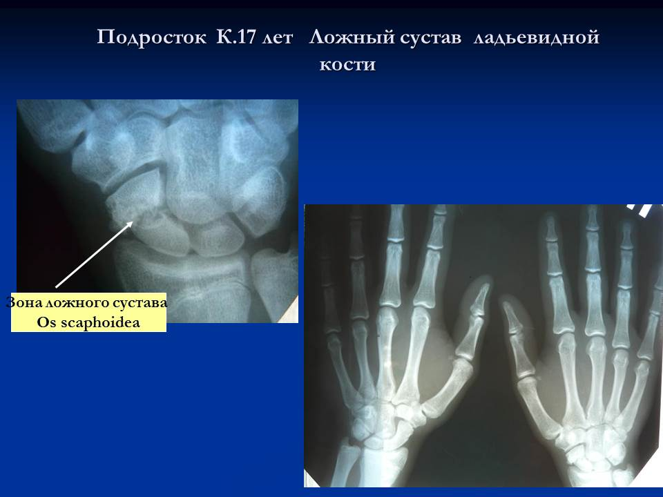 Перелом ладьевидной кости