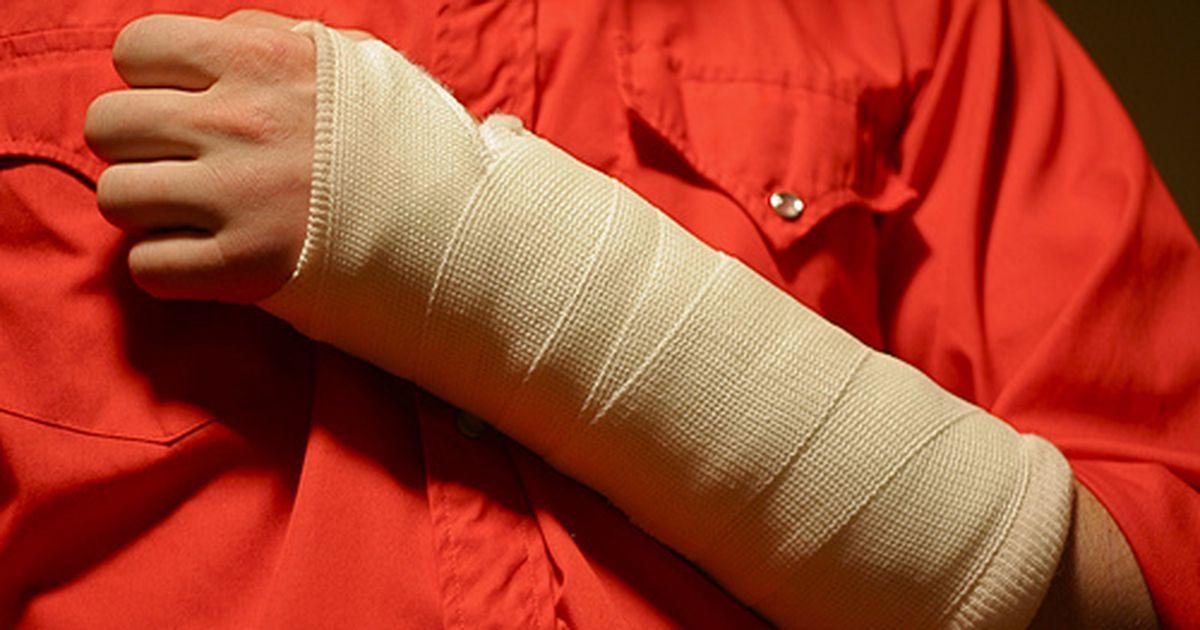 Перелом полулунной кости - симтомы, лечение, реабилитация