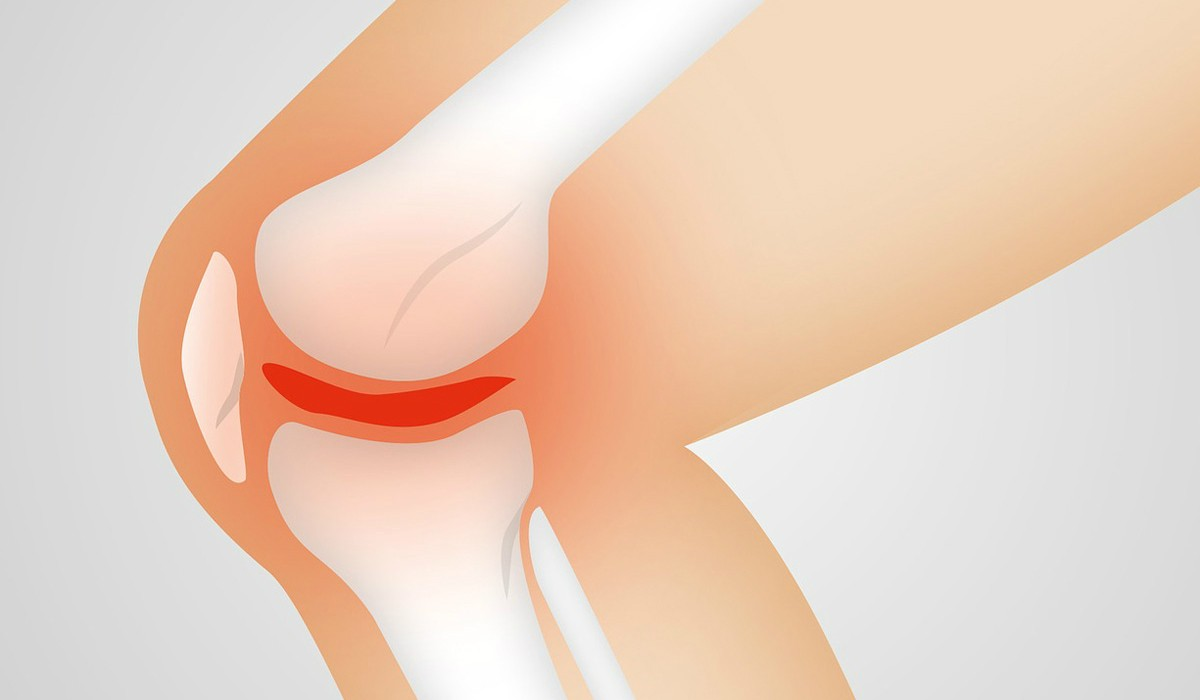 Боль в коленном суставе в согнутом положении что означает