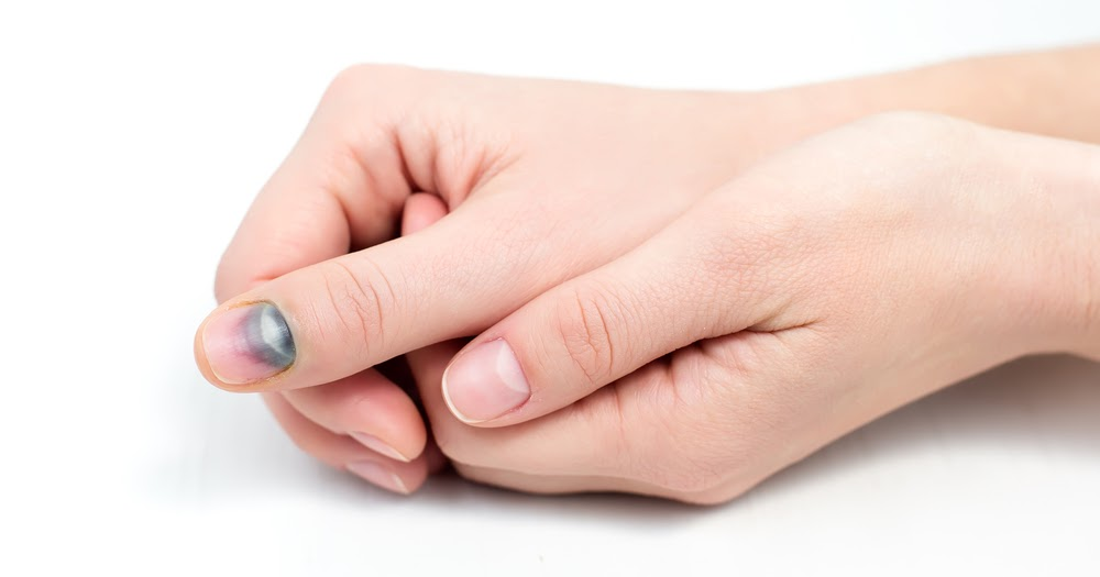 Лечение ногтевой пластины после ушиба и удаление крови