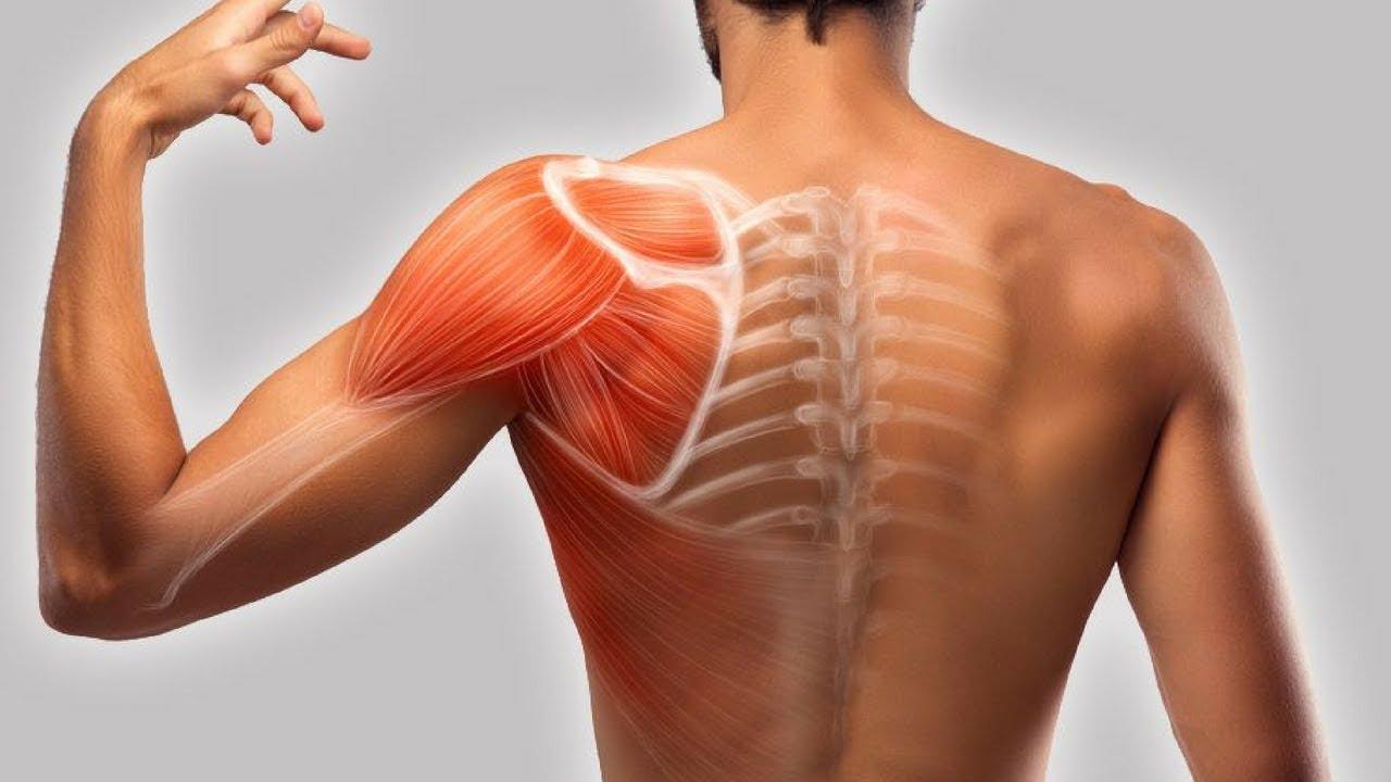 Тендиноз сухожилия надостной мышцы плечевого сустава