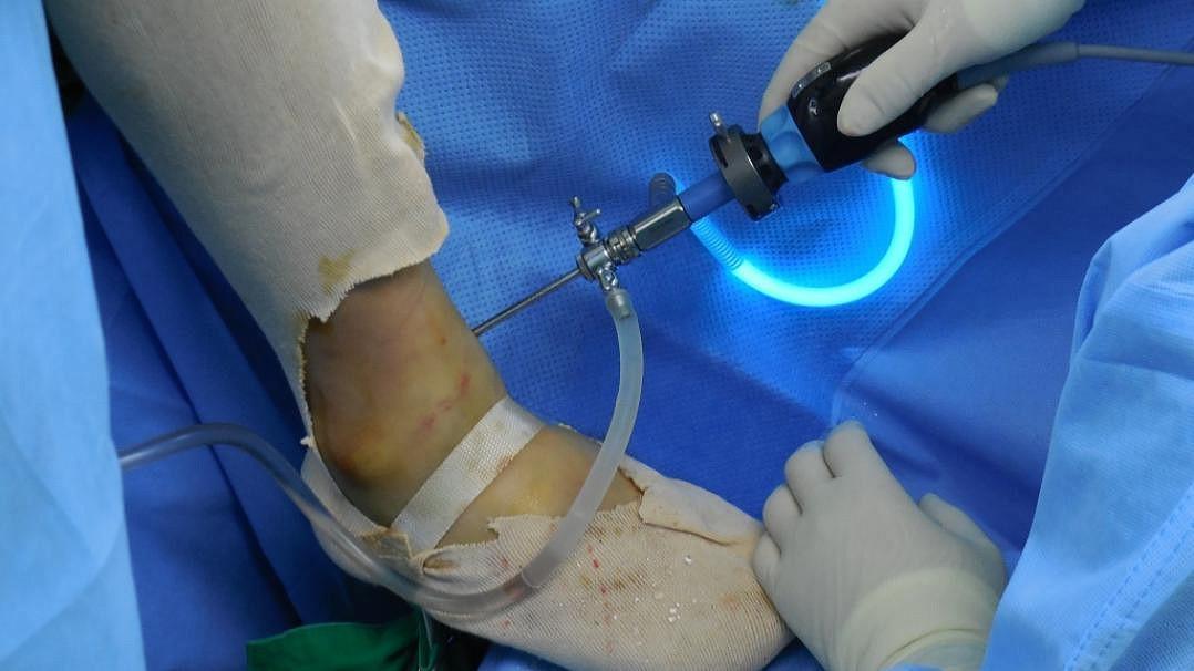 Разрыв связок голеностопного сустава