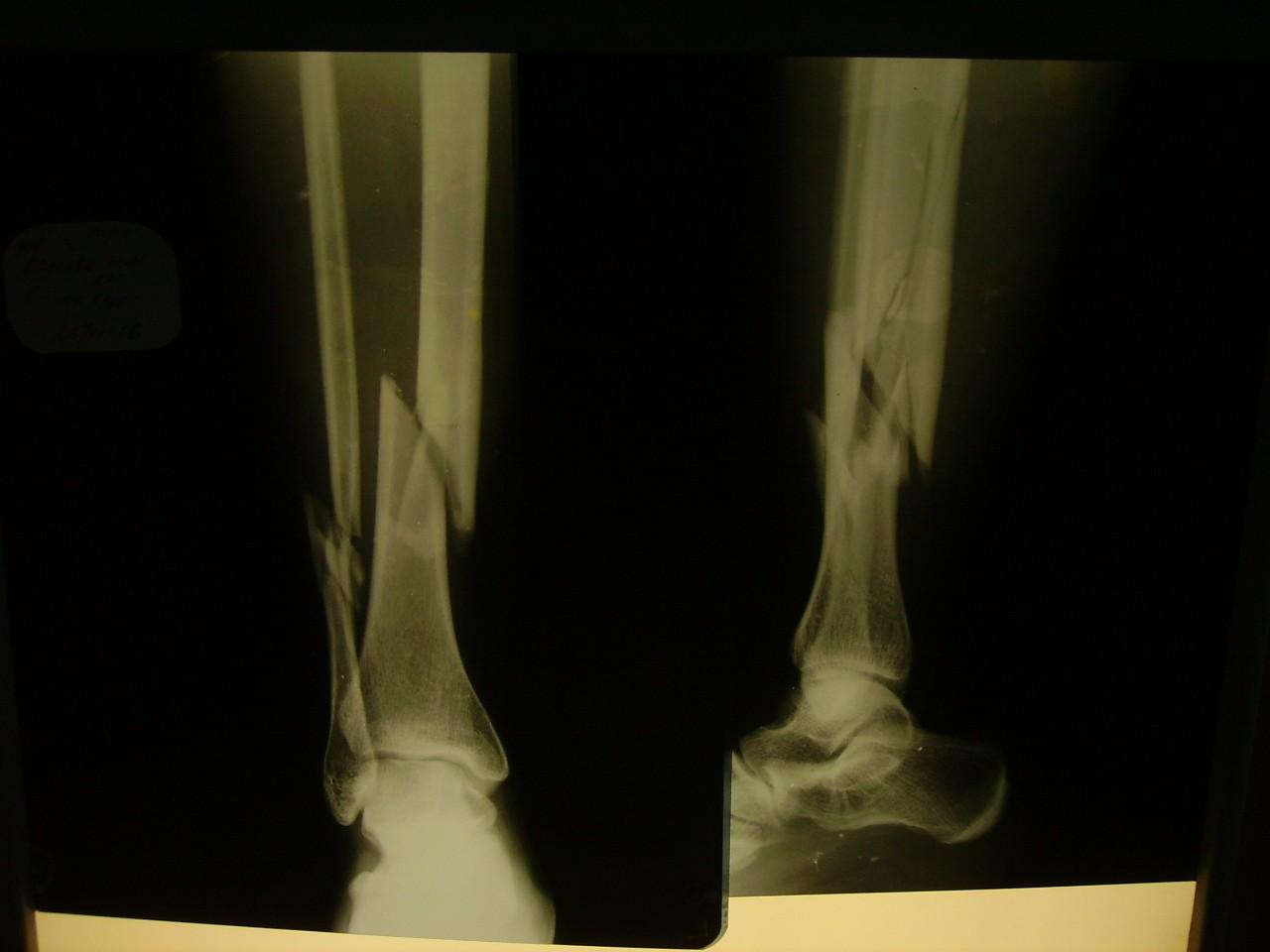 Перелом костей голени