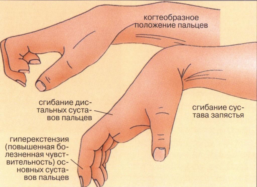 Ишемическая контрактура Фолькмана