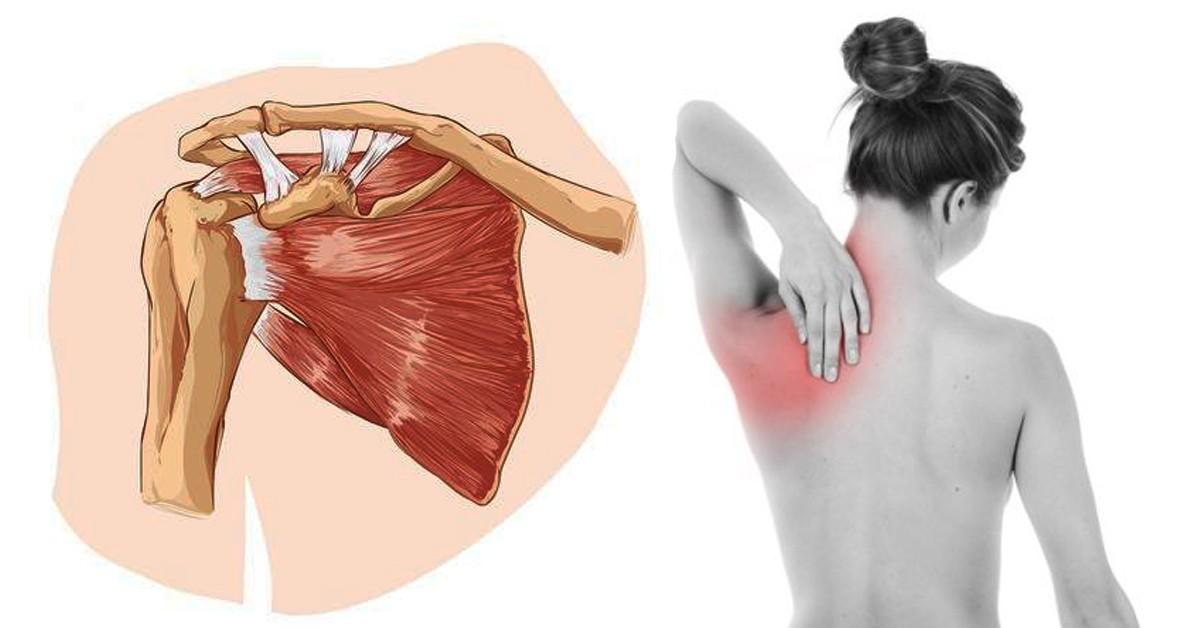 Травмы подлопаточной мышцы