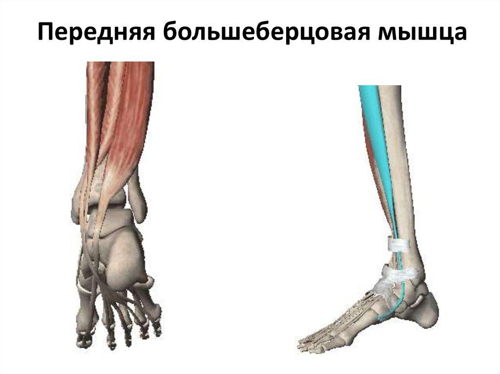 Тендинит большеберцовых мышц