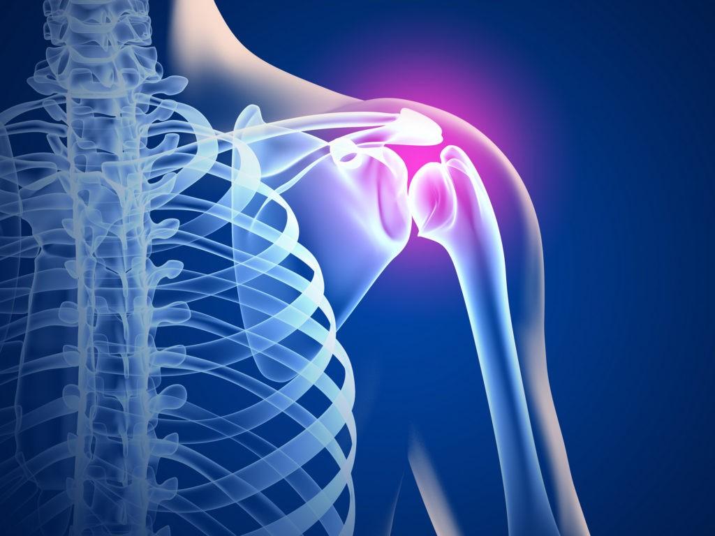 Травмы подостной мышцы