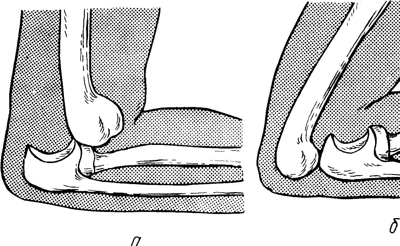 Вывих локтевого сустава