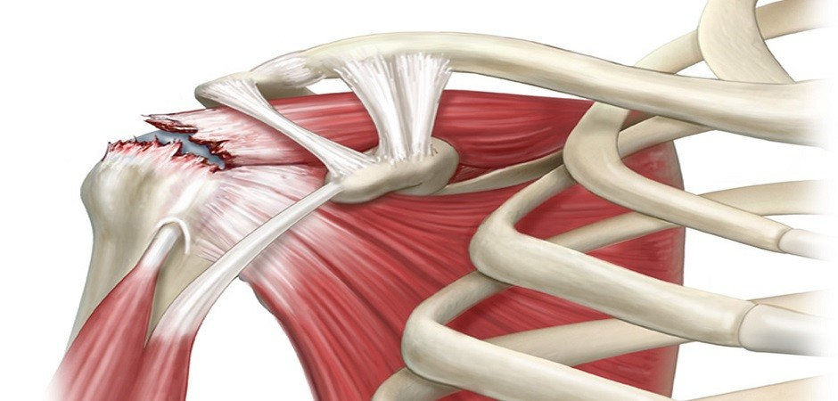 Разрыв сухожилия надостной мышцы