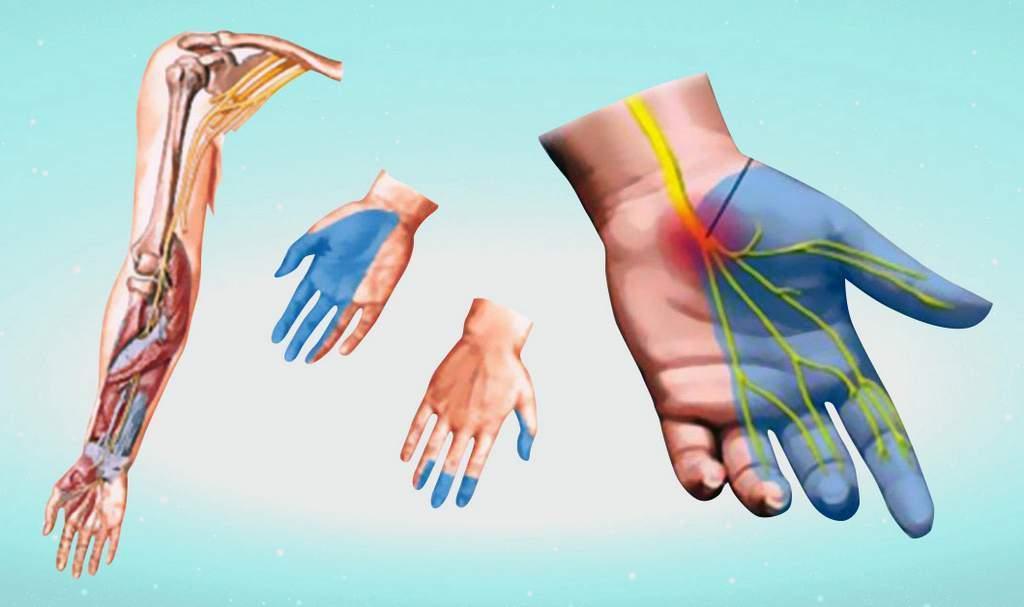 Повреждение срединного нерва