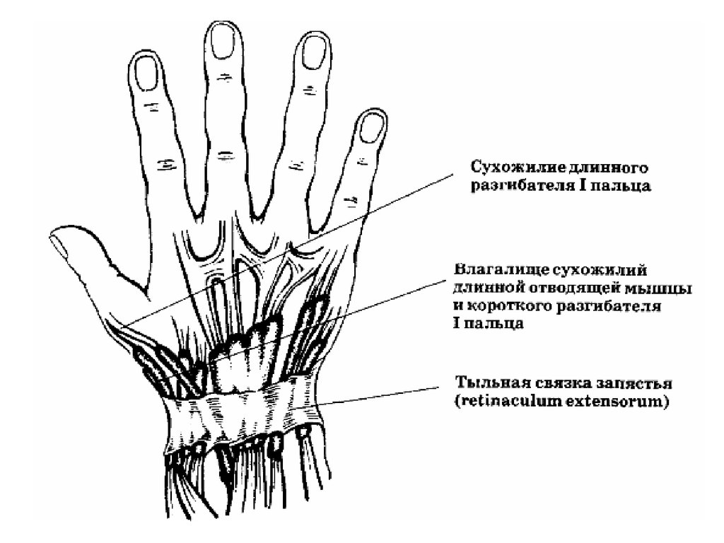 Повреждение сухожилий запястья
