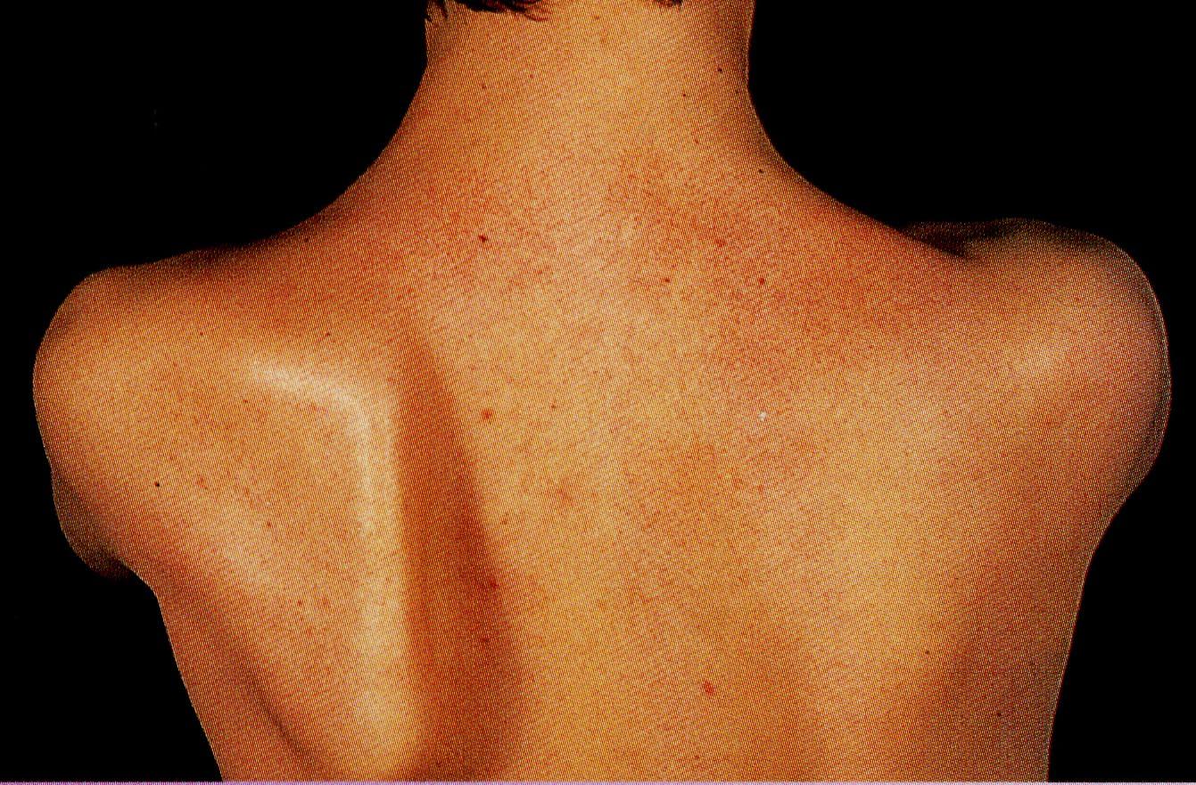 Синдром крыловидной лопатки