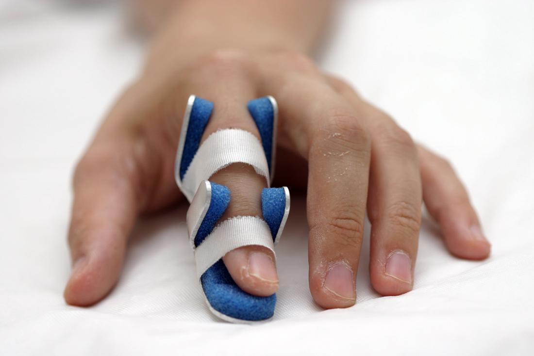 Повреждение сухожилий пальцев кисти