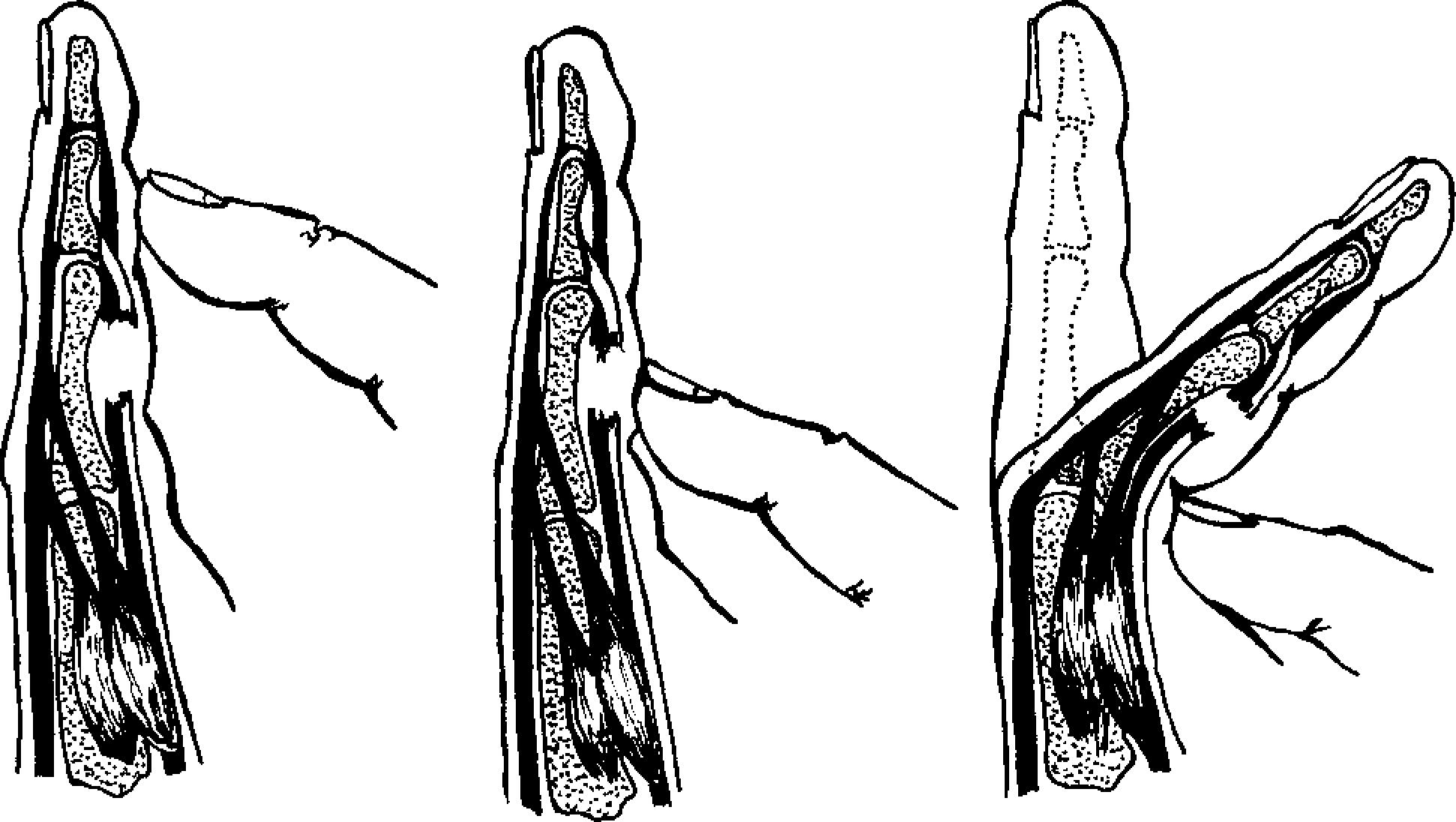 Теносиновит кисти