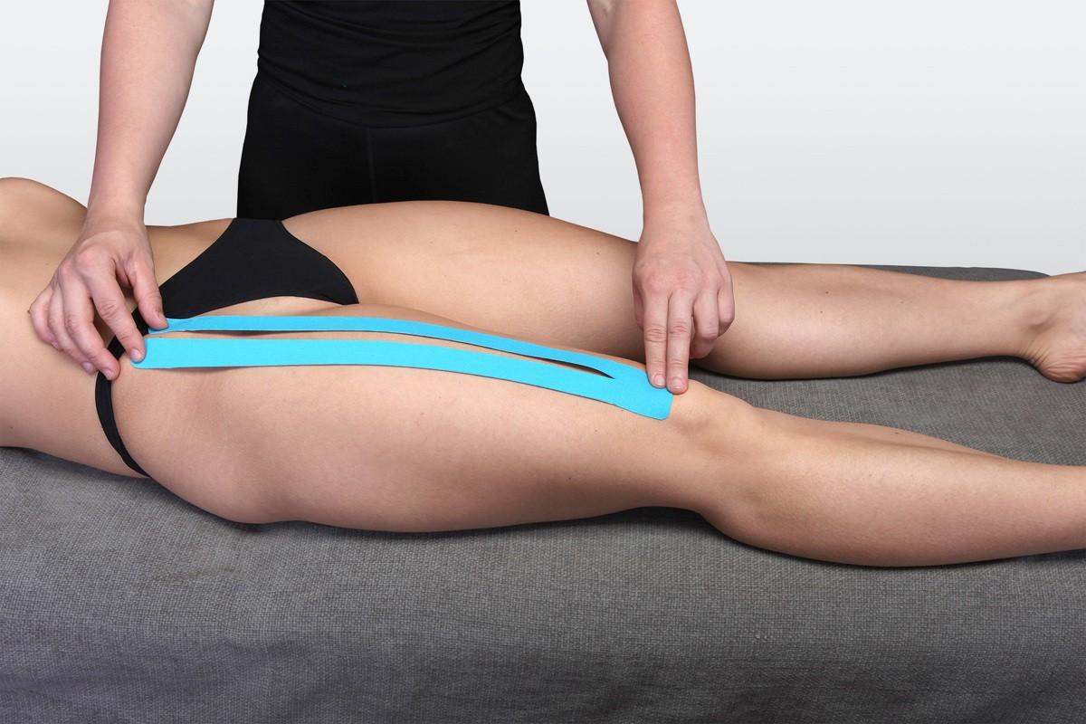 Тендинит приводящих мышц бедра