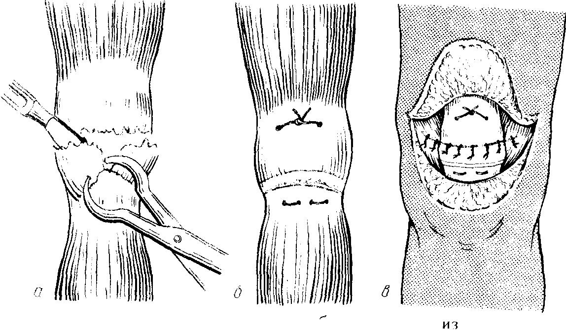 Перелом надколенника