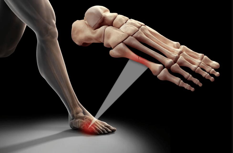 Перелом плюсневых костей