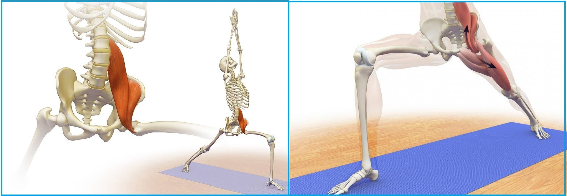 Тендинит подвздошно-поясничной мышцы