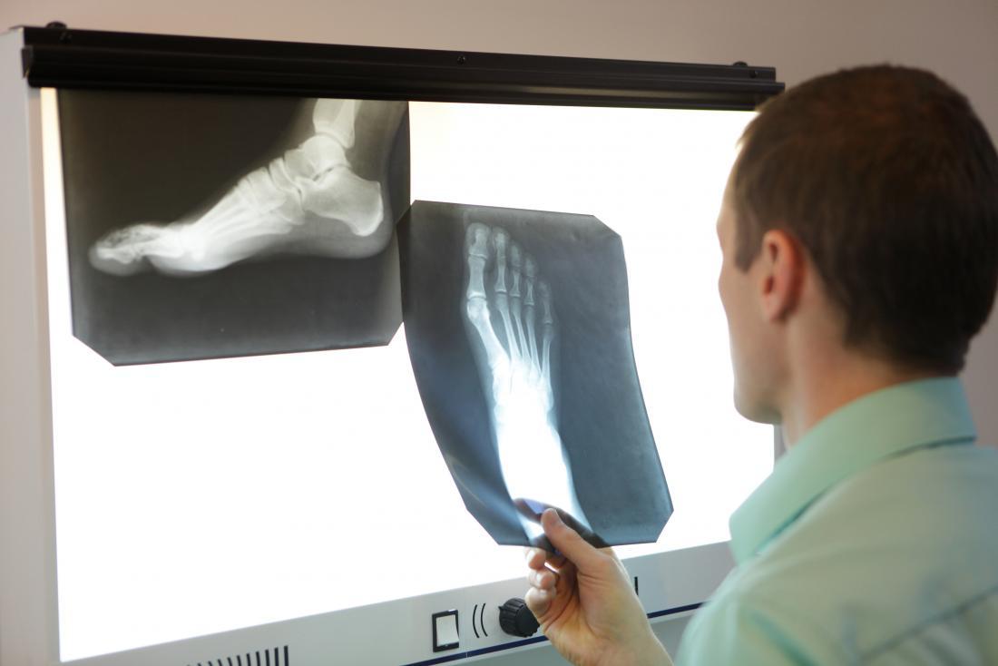 Перелом клиновидных костей