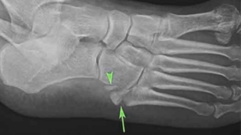 Перелом кубовидной кости
