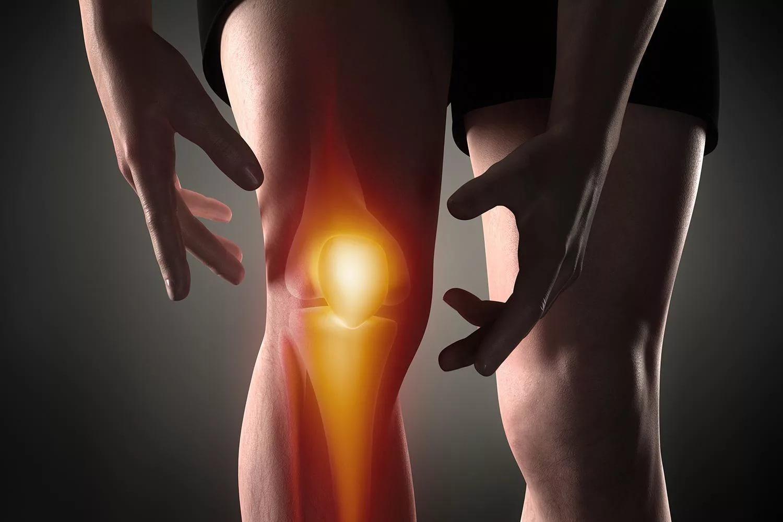 Тендинит подколенной мышцы