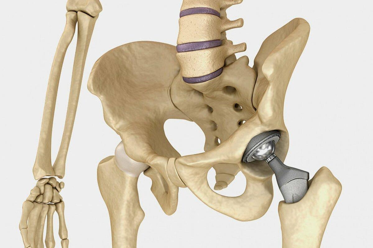 Остеоартроз тазобедренного сустава