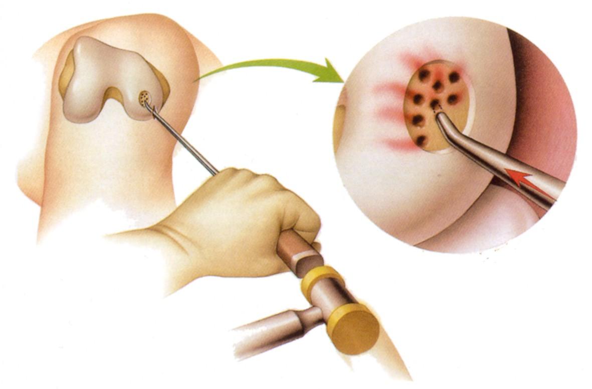 Остеохондральное повреждение (болезнь Кенига)