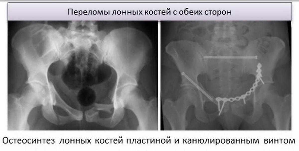 Перелом лобковой кости
