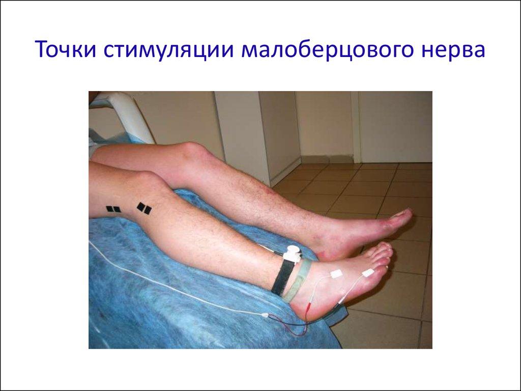 Повреждение малоберцового нерва
