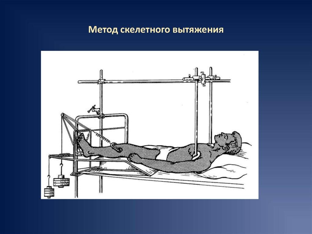 Стрессовый перелом костей таза