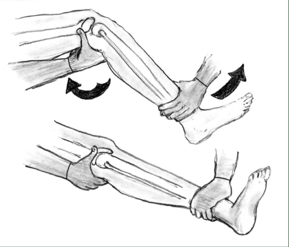 Вывих проксимального межберцового сустава
