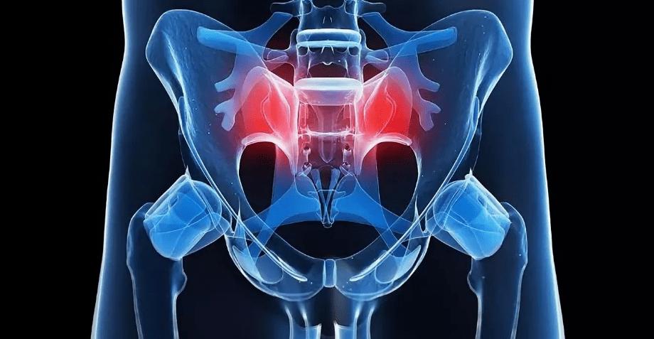 Апофизит подвздошной кости