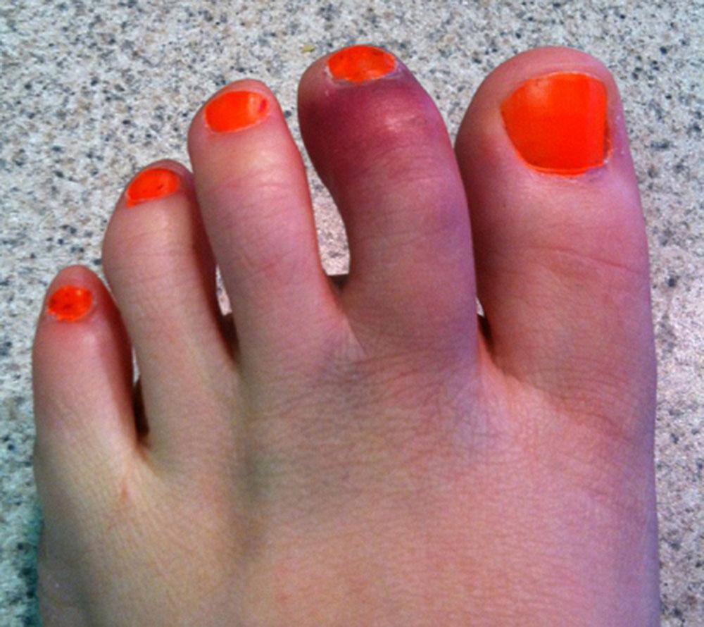 Перелом пальца стопы