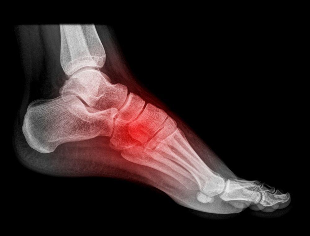 Синдром кубовидной кости